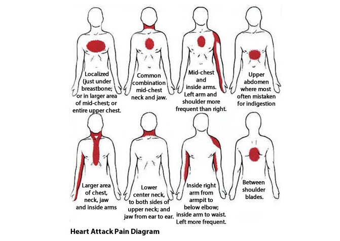 How to recognize a heart attack one month before it happens at the point when your heart is getting less blood this implies it your lungs are not going to have the capacity to get as much oxygen to the ccuart Gallery